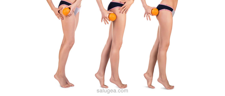 tipi di cellulite