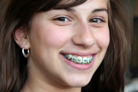 percaya diri gunakan behel gigi