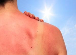 Remède naturel contre les coups de soleil