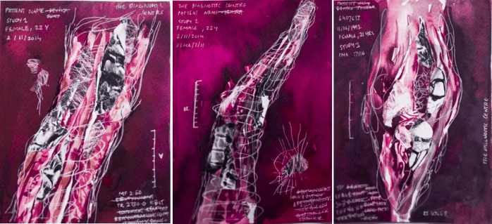 A triptych of journaled artworks. Against a deep purple background are three drawn forms made of white webbing lines and light purple-pink brushstrokes. Inside each form are torn black and white collaged elements. White handwritten clinical text forms the top left corner. On the bottom corner are scratched out words.