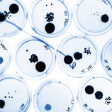 Petri dish with bacteria