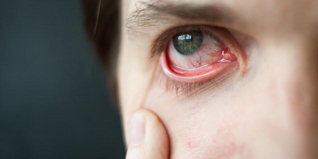 rode droge ogen, vermoeid, traanfilm