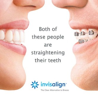 Invisalign – The clear way to Straight Teeth