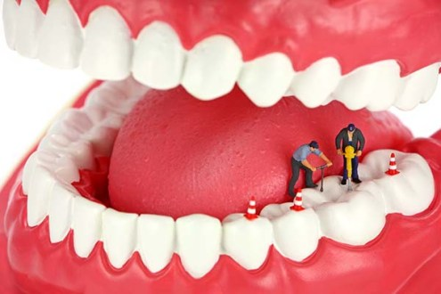 Is a Root Canal Treated Tooth Vulnerable to Decay?