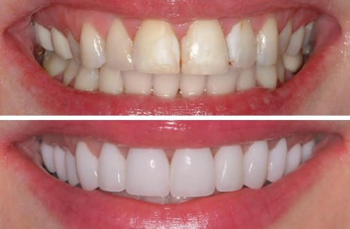 What are Veneers, Why you get Veneers and the After-care
