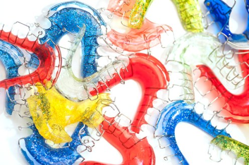 Why do we need orthodontic retainers?