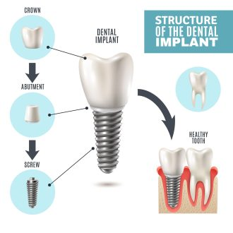 Misconceptions about dental implants