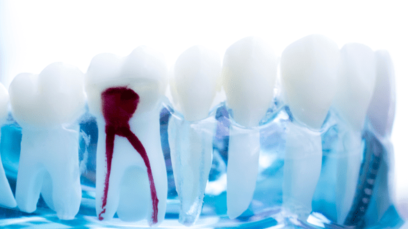 Getting a pain-free root canal is possible!