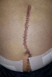 Scar 10 days after surgery. YOu can also wee where the drainage tubes were located.
