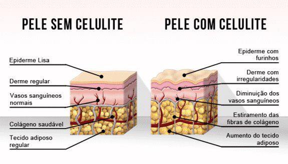 Pele com e sem celulite