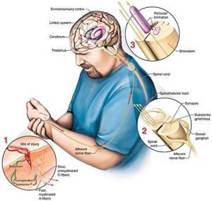 Сложная картинка, упрощенно иллюстрирющая сложный путь, который необходимо проделать нервному импульсу, чтобы мы могли воспринять боль с оцарапаной ладони