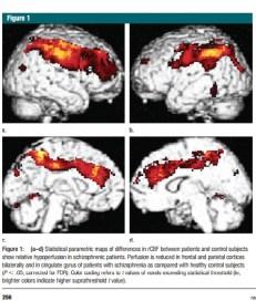 Şizofreni, beyne giden kan akışını değiştiriyor.