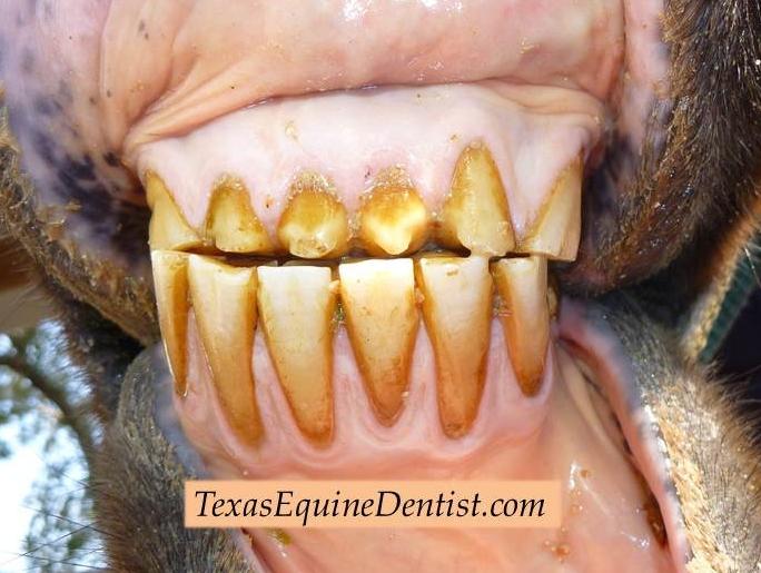 Denti consumati