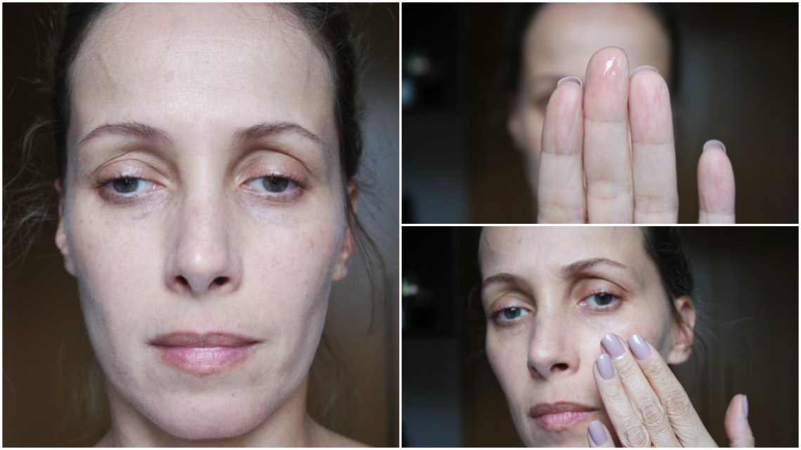 bio oil rosto antes kutiz blog da ana