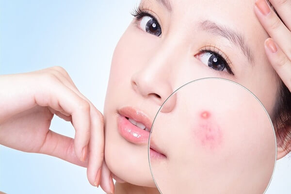 How to get smooth face without acne