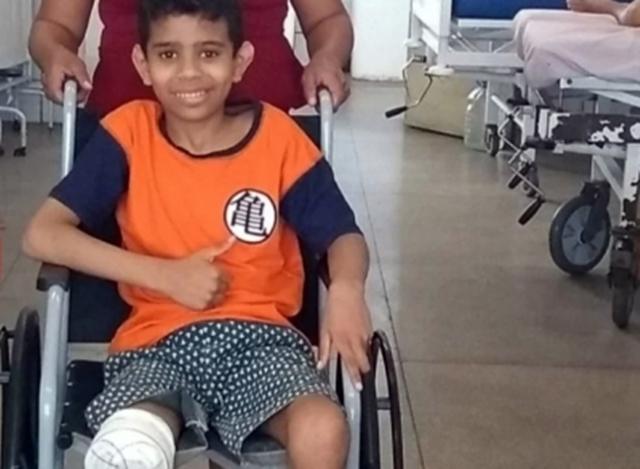 Garoto que perdeu a perna após ser espancado em escola precisa de ajuda