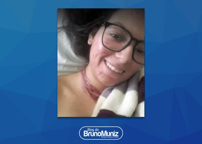 Jovem sobrevivente de acidente que vitimou quatro pessoas posta foto e agradece apoio