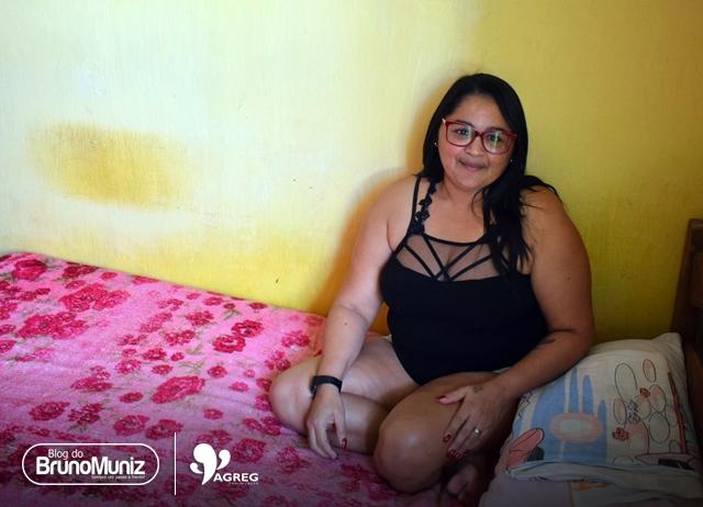 De volta a Santa Cruz do Capibaribe, mulher que perdeu perna em acidente luta por uma prótese