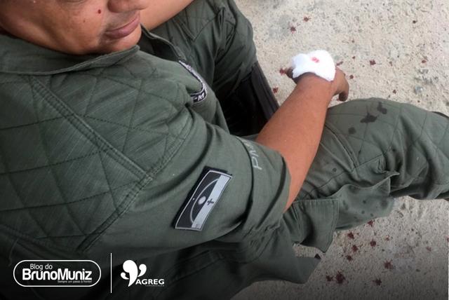 Sargento baleado em Santa Cruz do Capibaribe é transferido
