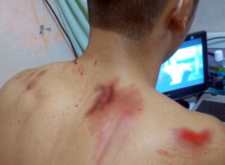 """""""A mão de Deus me acolheu"""", diz entregador de delivery atingido por automóvel em Santa Cruz do Capibaribe"""