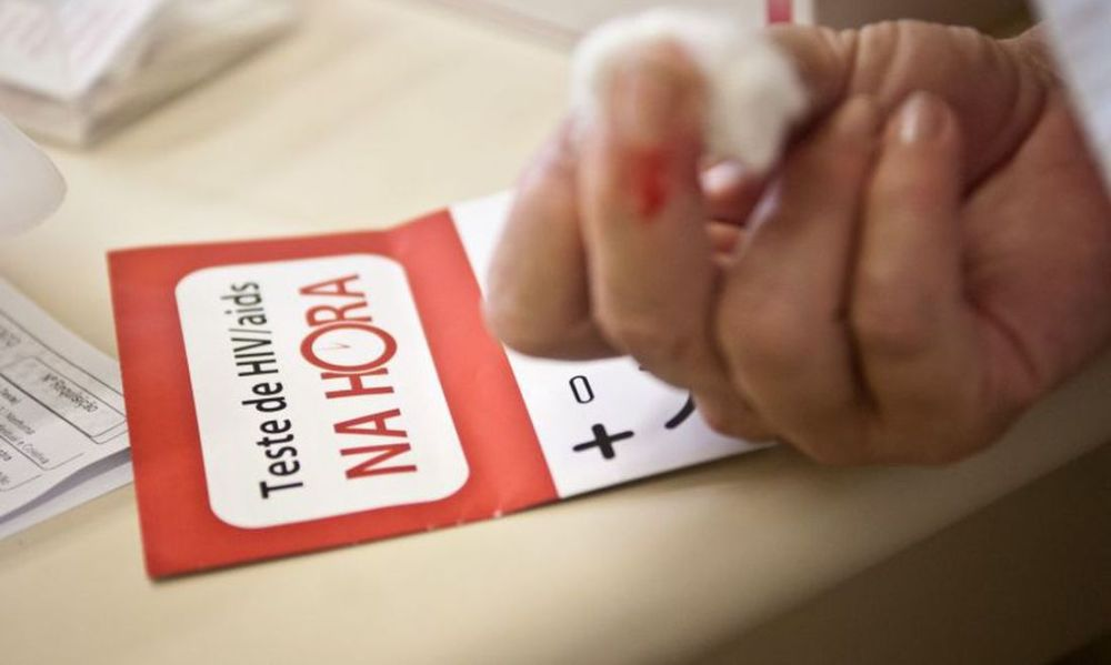 Governo suspende exame que define tratamento de pessoas com HIV e hepatite C
