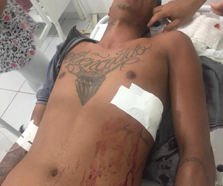 Jovem de 18 anos sofre tentativa de homicídio na tarde deste sábado em Santa Helena-MA
