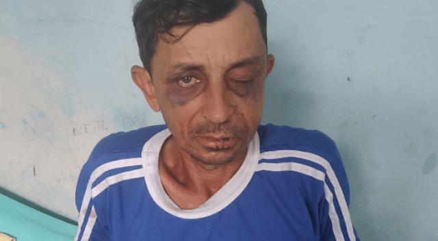 Garimpeiro natural de Viana pede ajuda para realizar exames após ser assaltado e agredido no Pará