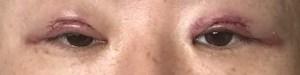 眼瞼下垂手術後,体験談,腫れ,ダウンタイム