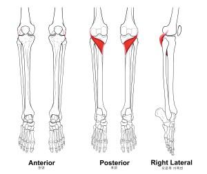 종아리(하퇴)의 근육 07  Popliteus 오금근 슬와근(膝窩筋) : 네이버 블로그