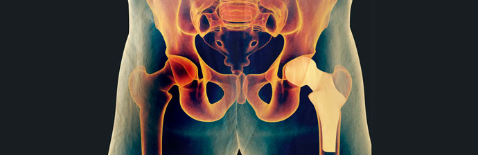 artroplastia-1