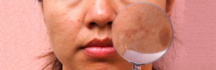 melasma-6 O Que é Melasma? Saiba Tudo sobre Esta Condição