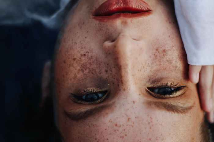 Symptoms dry skin.