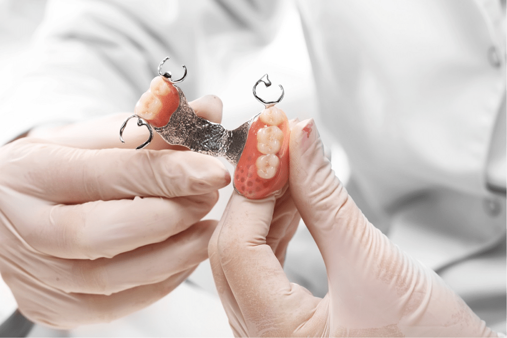 Interesting facts about dental implants and why they will work for you