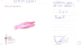"Rupert Grint Da su ""Beso"" en Apoyo a la Campaña de 'The Eve Appeal' Contra Cánceres Ginecológicos"