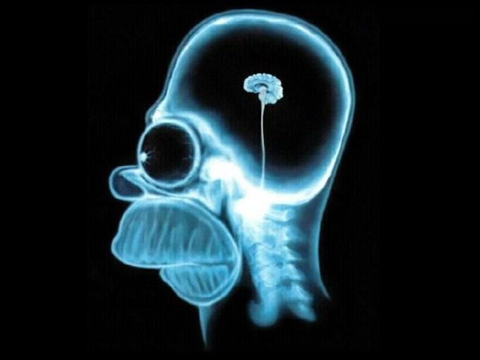 homer_brain