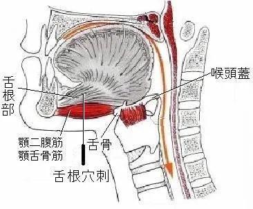耳鳴りの針灸治療改訂版 その2 - 現代醫學的鍼灸治療