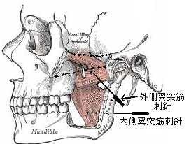 顎関節癥由來の耳鳴に対する針灸 - 現代醫學的鍼灸治療