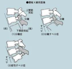 第五腰椎分離癥 - Jandy's Blog