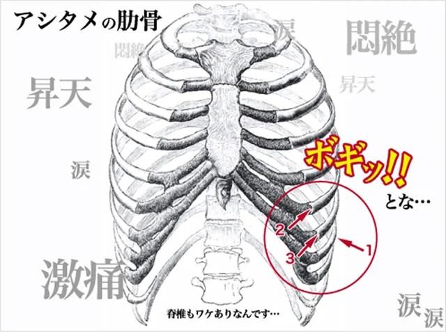 痛み あばら骨 肋骨のヒビの痛みの期間はどれくらいになるのか検証。