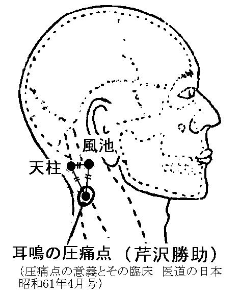 現代醫學的鍼灸治療(3ページ目)