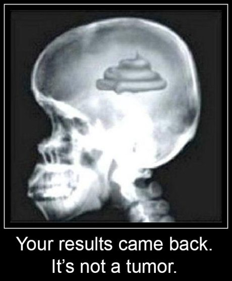 Your results came back... it's not a tumor.