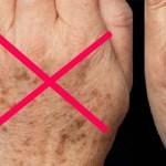 Felejtsd el az öregedési foltokat, reggelre sokkal szebb lehet a bőröd ettől!