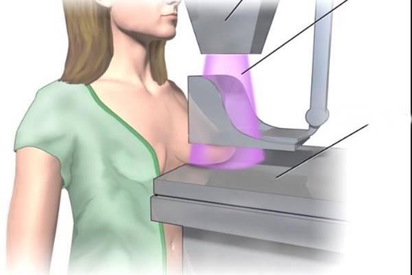 Egy orvos megdöbbentő őszintesége a mammográfiáról, amit minden nőnek el kell olvasnia!