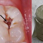 Ez a házi készítésű fogkrém segíthet meggyógyítani a lyukas fogakat, és segíthet eltüntetheti a szuvasodást