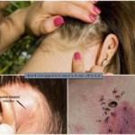 Ezt nem szabad figyelmen kívül hagyni! A nyirokcsomók előre jelzik a parazitákat és sok esetben a rákot is!