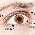 A szemeid ezekről a betegségekről árulkodnak…