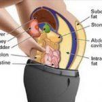 A zsírsejtekben lévő méreganyagok hizlalnak és puffasztanak? Így tisztítsd meg a szervezeted!