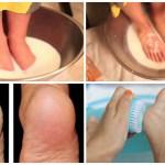 Ha most elkezded ezt a házi kezelést, nyárra szép és puha lesz a lábfejed? (VIDEO)