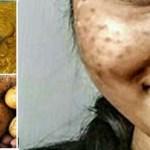 CSAK NÉHÁNY ÉJSZAKA ÉS 3 MÓDSZER… és eltűnhetnek a foltok az arcodról