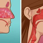 Hogyan kell megszüntetni az orrmelléküreg gyulladás tüneteit igen rövid idő alatt
